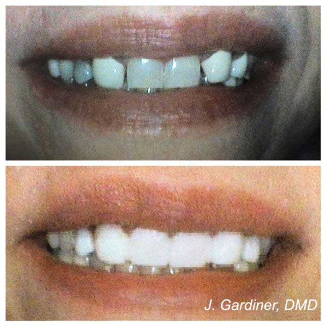 Before and after smile at Singing River Dentistry
