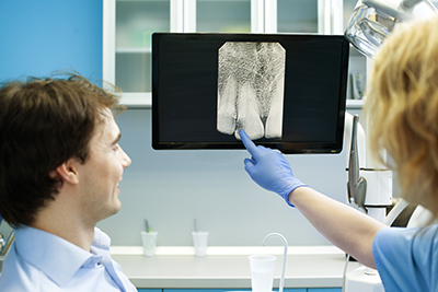 How Digital Radiography Is Changing the Face of Dentistry?